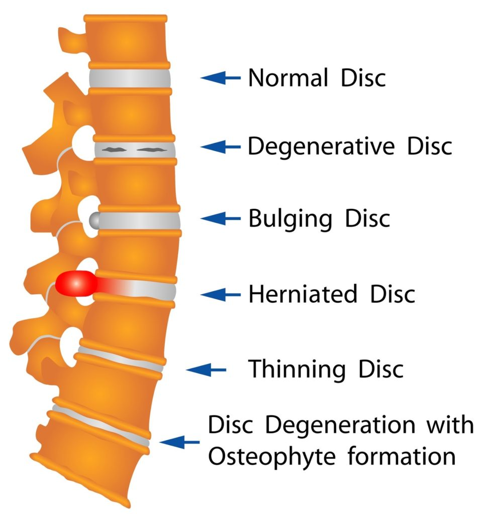 Injuries to Neck, Back, or Spine from Accident